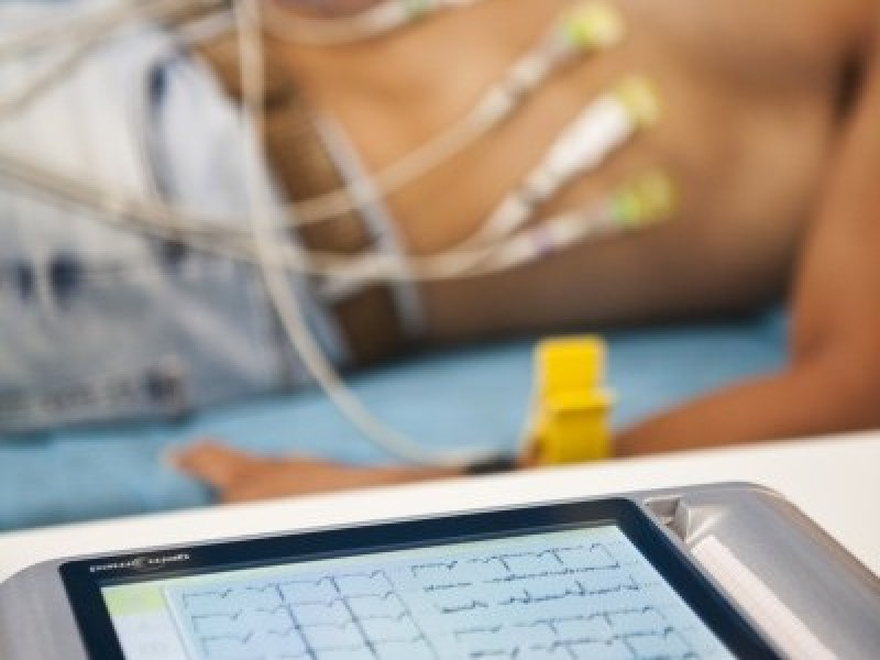 Electrocardiografía Digital