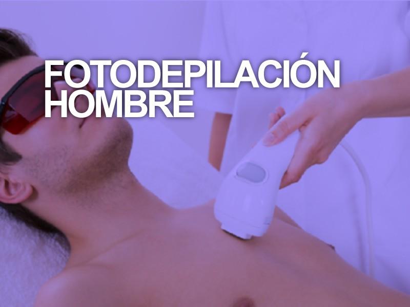 Fotodepilación hombre Pecho + Espalda